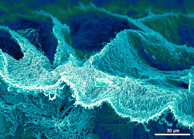Nanosea,  2015, (colors added by image processing): multi-wall carbon nanotubes decorated with platinum nanoparticles. Image courtesy of Jonathan Quinson, Nanomaterials by Design Group, Department of Materials, University of Oxford, UK. (Used with permission.)